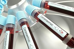 Coronavirus, 50 casi in Puglia. Sono 3 nella Bat
